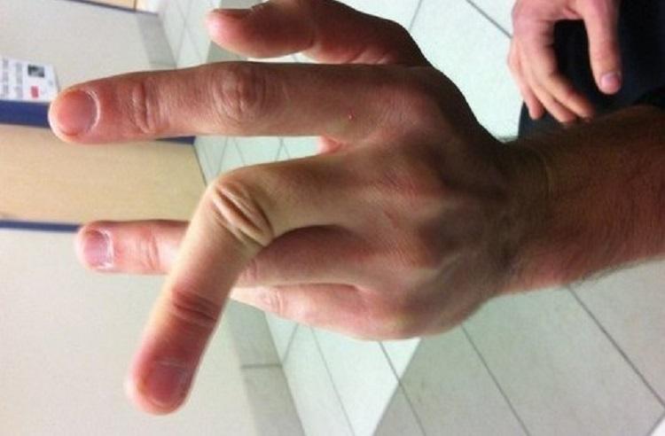 Задержанный кировчанин сломал палец полицейскому