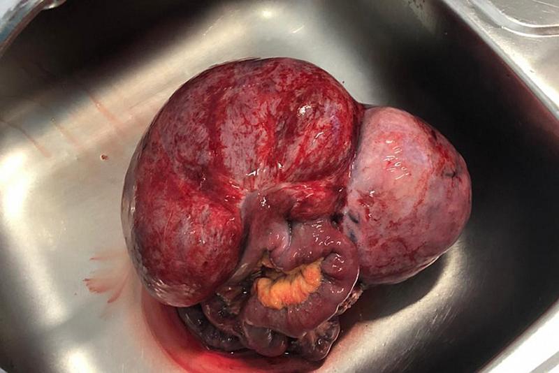 Онкологи удалили огромную опухоль у кировчанина